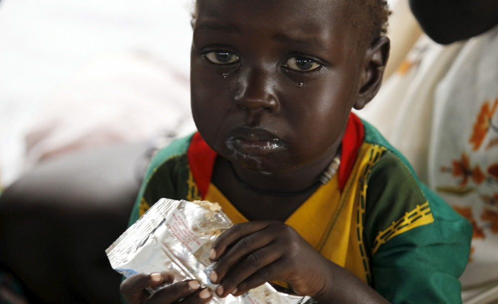 A refugee child from South Sudan feeds on food supplements at a health centre at the Kule refugee camp in Ethiopia's Gambella region